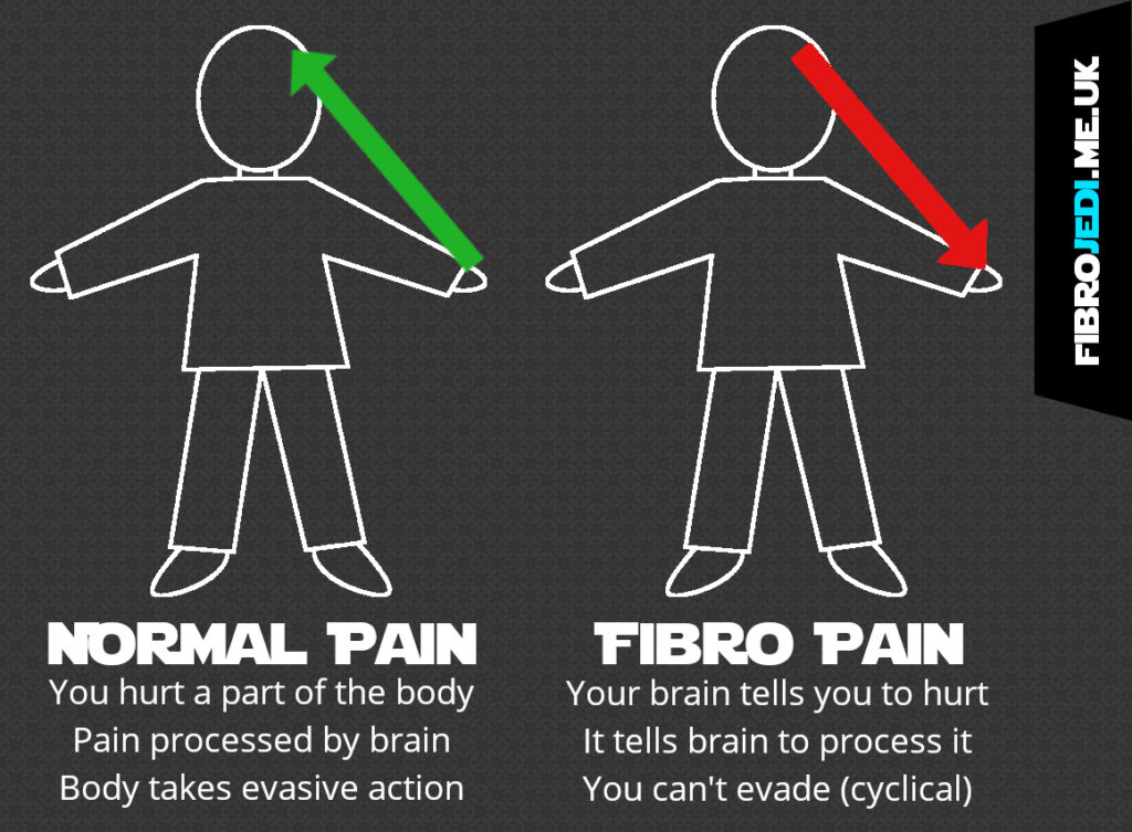 Normal Pain Signals vs Fibromyalgia Pain Signals